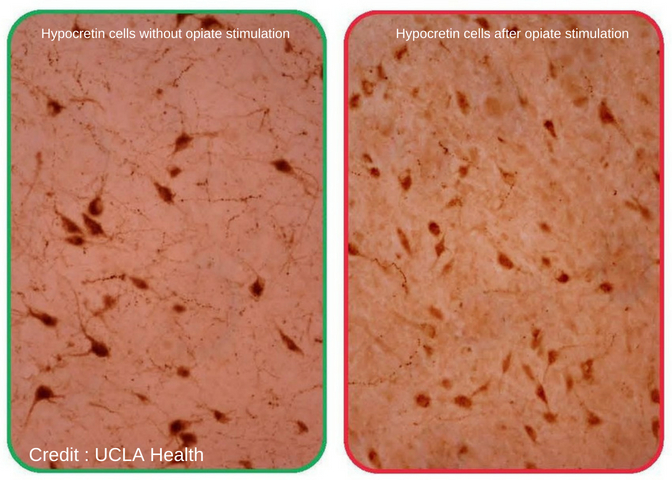 Brain cells similar to narcoleptics in heroin addicts, The Recover